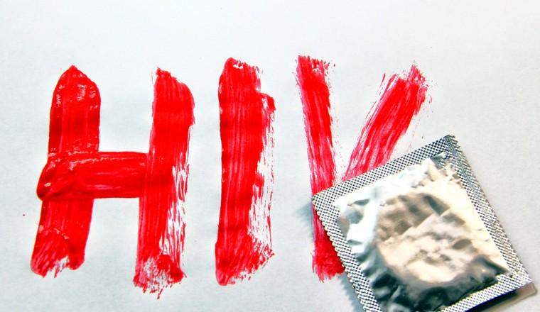 hiv positief
