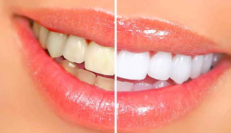 witte tanden zonder bleken